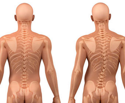 Scoliosis-treatment